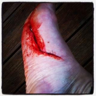 surfboard fin injury